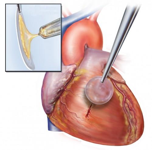 페레이라 박사는 미국 연구진과 공동으로 빛을 만나면 고체로 바뀌는 접착제를 개발해 심장벽의 손상 부위에 봉합하는 데 성공했다.  - 카프 연구소 제공
